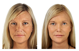 ageing-skin-fillers