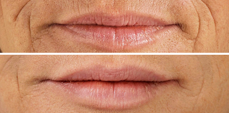 Dermal fillers with COSMEDICAL® Guernsey