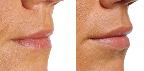 dermal-fillers-lips2