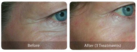 Laser Skin Treatments lines-eyes-before-after