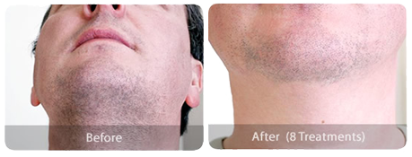 ipl hair removal male-neck-before-after