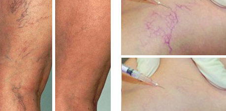 thread veins microsclerotherapy-guernsey