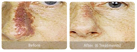 Laser Skin Treatments port-wine-stain-before-after