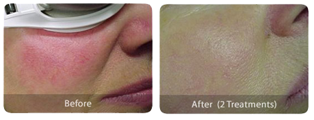 Laser Skin Treatments rosacea-before-after