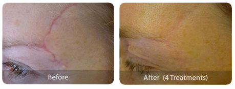 Laser Skin Treatments scarring-before-after