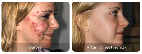 Laser Skin Treatments acne-before-after