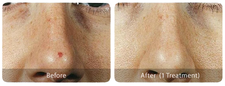 Laser Skin Treatments angioma-before-after
