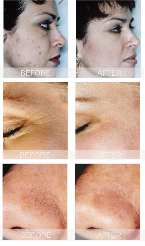 microdermabrasion-images